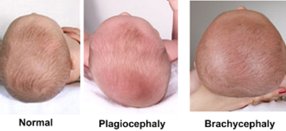 osteopathie pédiatrique chloé charpentier ostéopathe vence juan les pins antibes plagiocéphalie